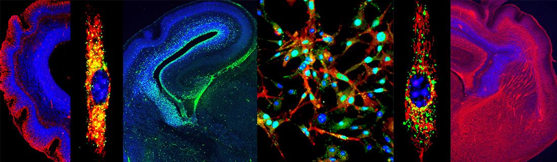Angiogenesis research